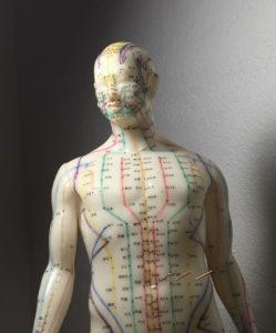 Hvad er kinesisk akupunktur